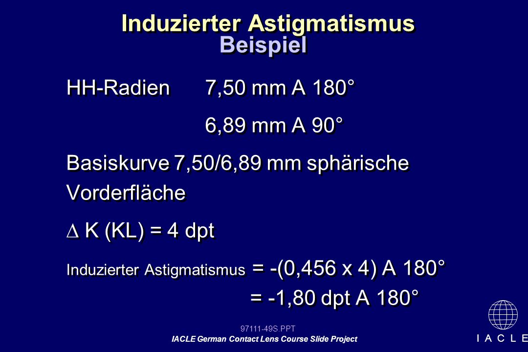 97111-49S.PPT IACLE German Contact Lens Course Slide Project I A C L E Induzierter Astigmatismus HH-Radien7,50 mm A 180° 6,89 mm A 90° Basiskurve 7,50/6,89 mm sphärische Vorderfläche K (KL) = 4 dpt Induzierter Astigmatismus = -(0,456 x 4) A 180° = -1,80 dpt A 180° HH-Radien7,50 mm A 180° 6,89 mm A 90° Basiskurve 7,50/6,89 mm sphärische Vorderfläche K (KL) = 4 dpt Induzierter Astigmatismus = -(0,456 x 4) A 180° = -1,80 dpt A 180° Beispiel
