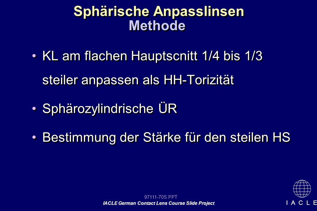 97111-70S.PPT IACLE German Contact Lens Course Slide Project I A C L E Sphärische Anpasslinsen KL am flachen Hauptscnitt 1/4 bis 1/3 steiler anpassen als HH-Torizität Sphärozylindrische ÜR Bestimmung der Stärke für den steilen HS KL am flachen Hauptscnitt 1/4 bis 1/3 steiler anpassen als HH-Torizität Sphärozylindrische ÜR Bestimmung der Stärke für den steilen HS Methode