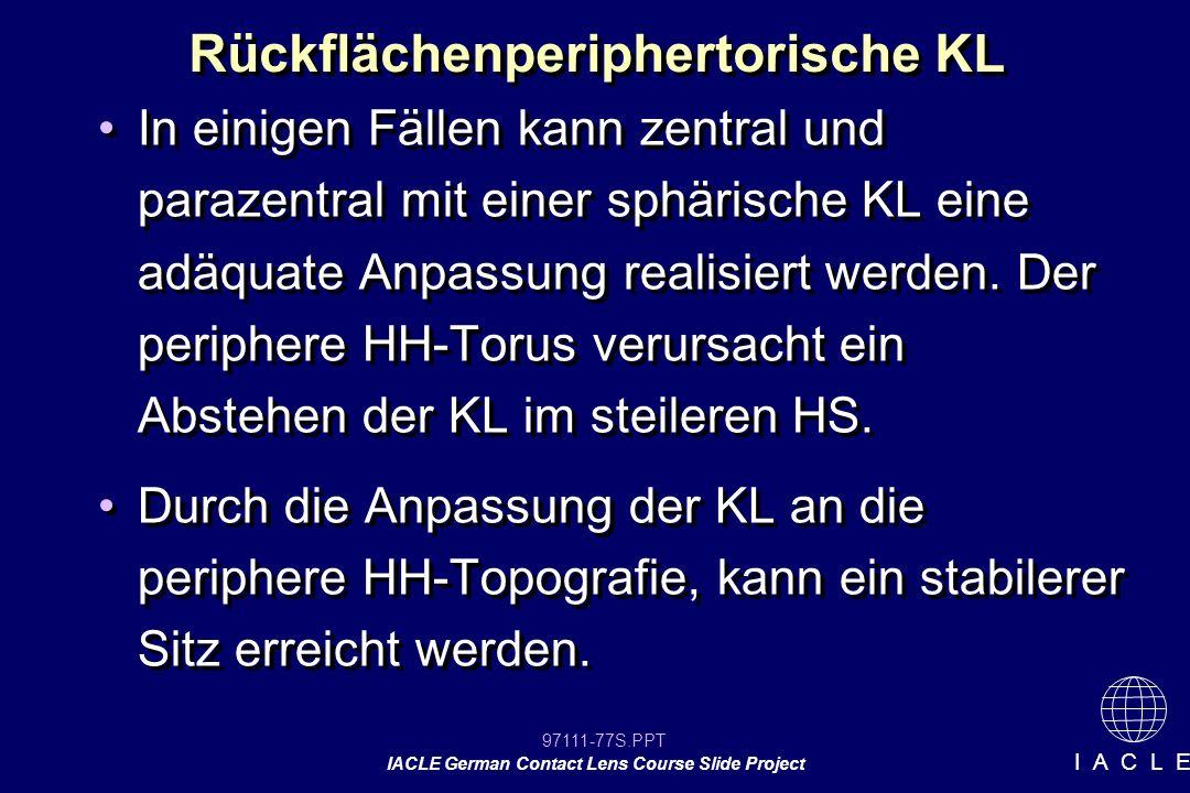 97111-77S.PPT IACLE German Contact Lens Course Slide Project I A C L E Rückflächenperiphertorische KL In einigen Fällen kann zentral und parazentral mit einer sphärische KL eine adäquate Anpassung realisiert werden.