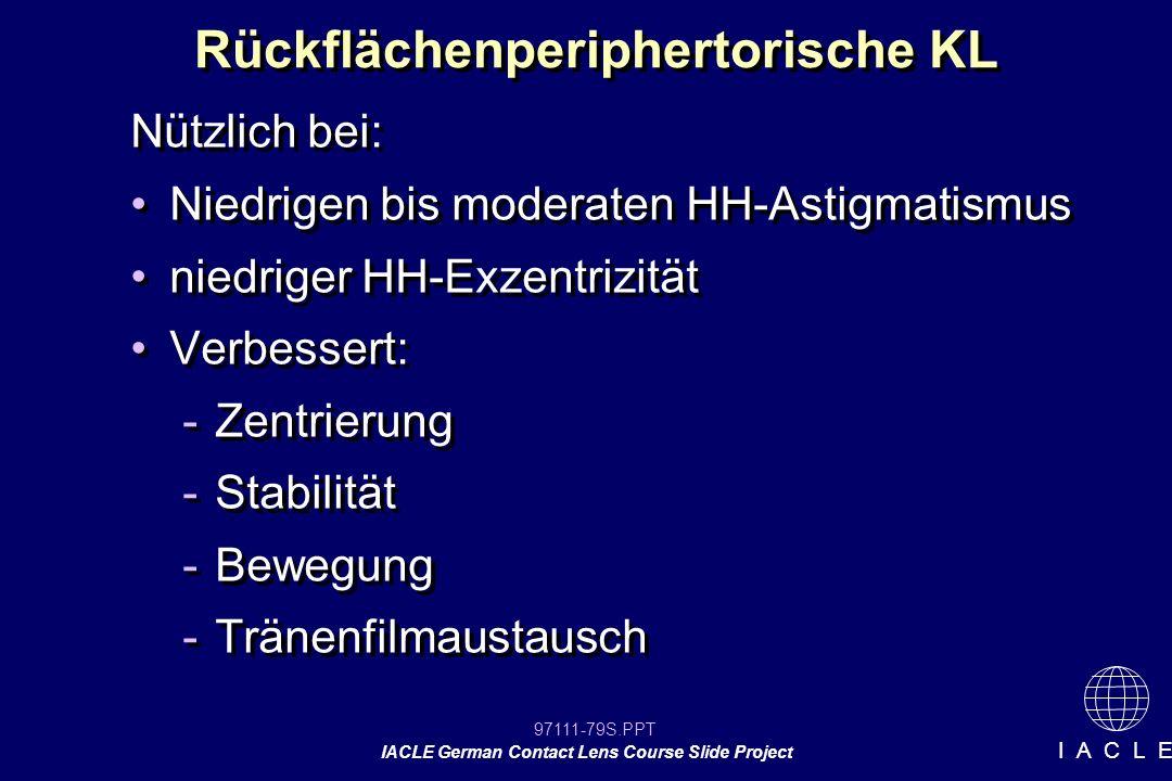 97111-79S.PPT IACLE German Contact Lens Course Slide Project I A C L E Rückflächenperiphertorische KL Nützlich bei: Niedrigen bis moderaten HH-Astigmatismus niedriger HH-Exzentrizität Verbessert: -Zentrierung -Stabilität -Bewegung -Tränenfilmaustausch Nützlich bei: Niedrigen bis moderaten HH-Astigmatismus niedriger HH-Exzentrizität Verbessert: -Zentrierung -Stabilität -Bewegung -Tränenfilmaustausch