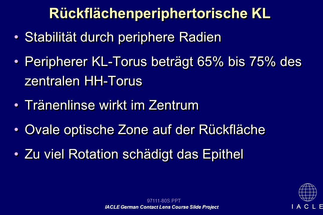 97111-80S.PPT IACLE German Contact Lens Course Slide Project I A C L E Rückflächenperiphertorische KL Stabilität durch periphere Radien Peripherer KL-Torus beträgt 65% bis 75% des zentralen HH-Torus Tränenlinse wirkt im Zentrum Ovale optische Zone auf der Rückfläche Zu viel Rotation schädigt das Epithel Stabilität durch periphere Radien Peripherer KL-Torus beträgt 65% bis 75% des zentralen HH-Torus Tränenlinse wirkt im Zentrum Ovale optische Zone auf der Rückfläche Zu viel Rotation schädigt das Epithel