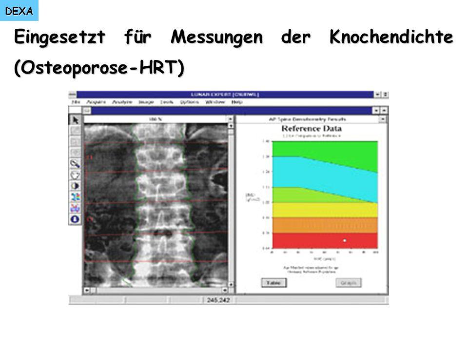 DEXA Eingesetzt für Messungen der Knochendichte (Osteoporose-HRT)