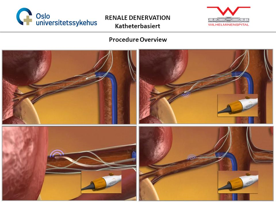Procedure Overview RENALE DENERVATION Katheterbasiert