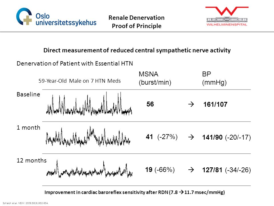 Direct measurement of reduced central sympathetic nerve activity Denervation of Patient with Essential HTN Schlaich et al. NEJM. 2009;36(9):932-934. B