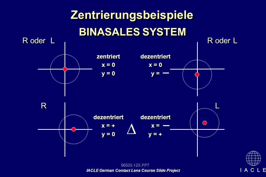 96505-12S.PPT IACLE German Contact Lens Course Slide Project I A C L E Zentrierungsbeispiele BINASALES SYSTEM zentriert x = 0 y = 0 zentriert x = 0 y = 0 dezentriert x = 0 y = dezentriert x = 0 y = dezentriert x = + y = 0 dezentriert x = + y = 0 dezentriert x = y = + dezentriert x = y = + R oder L R R L L