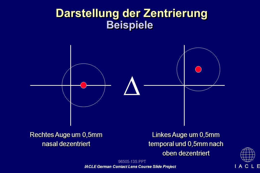 96505-13S.PPT IACLE German Contact Lens Course Slide Project I A C L E Darstellung der Zentrierung Rechtes Auge um 0,5mm nasal dezentriert Beispiele L
