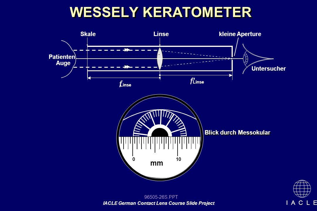 96505-26S.PPT IACLE German Contact Lens Course Slide Project I A C L E WESSELY KERATOMETER Patienten Auge Untersucher SkaleLinse f f' Linse kleine Ape