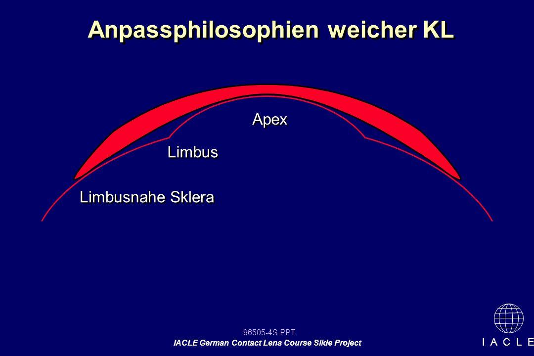 96505-85S.PPT IACLE German Contact Lens Course Slide Project I A C L E Bewegung (in mm oder Grading) Sitzverhalten in % -100% = Festsitz -40 - 60 % erwünscht -0% = KL verbleibt nicht auf dem Auge Bewegung (in mm oder Grading) Sitzverhalten in % -100% = Festsitz -40 - 60 % erwünscht -0% = KL verbleibt nicht auf dem Auge Anpassung weicher KL Bewertung der Anpassung