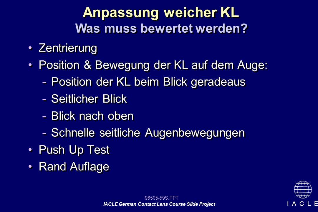 96505-59S.PPT IACLE German Contact Lens Course Slide Project I A C L E Anpassung weicher KL Was muss bewertet werden? Zentrierung Position & Bewegung
