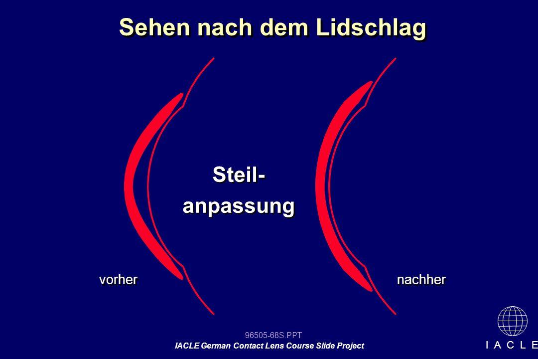 96505-68S.PPT IACLE German Contact Lens Course Slide Project I A C L E Sehen nach dem Lidschlag vorher nachher Steil- anpassung