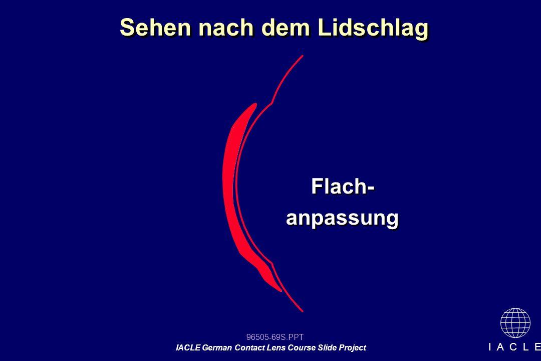 96505-69S.PPT IACLE German Contact Lens Course Slide Project I A C L E Sehen nach dem Lidschlag Flach- anpassung