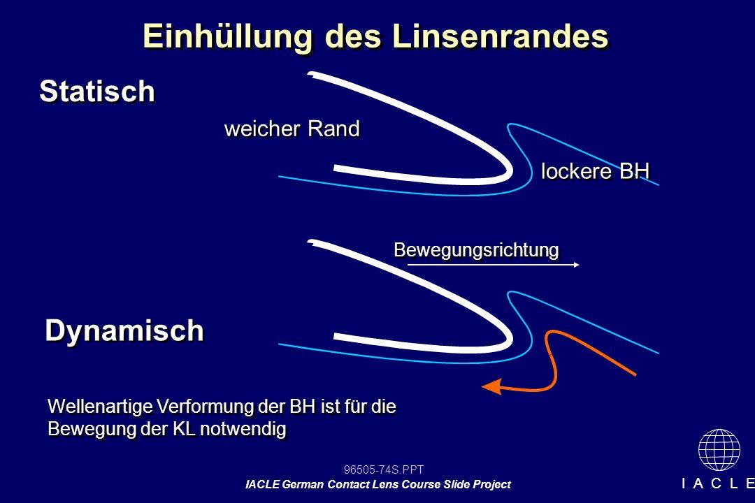 96505-74S.PPT IACLE German Contact Lens Course Slide Project I A C L E Einhüllung des Linsenrandes Statisch Dynamisch weicher Rand Bewegungsrichtung W
