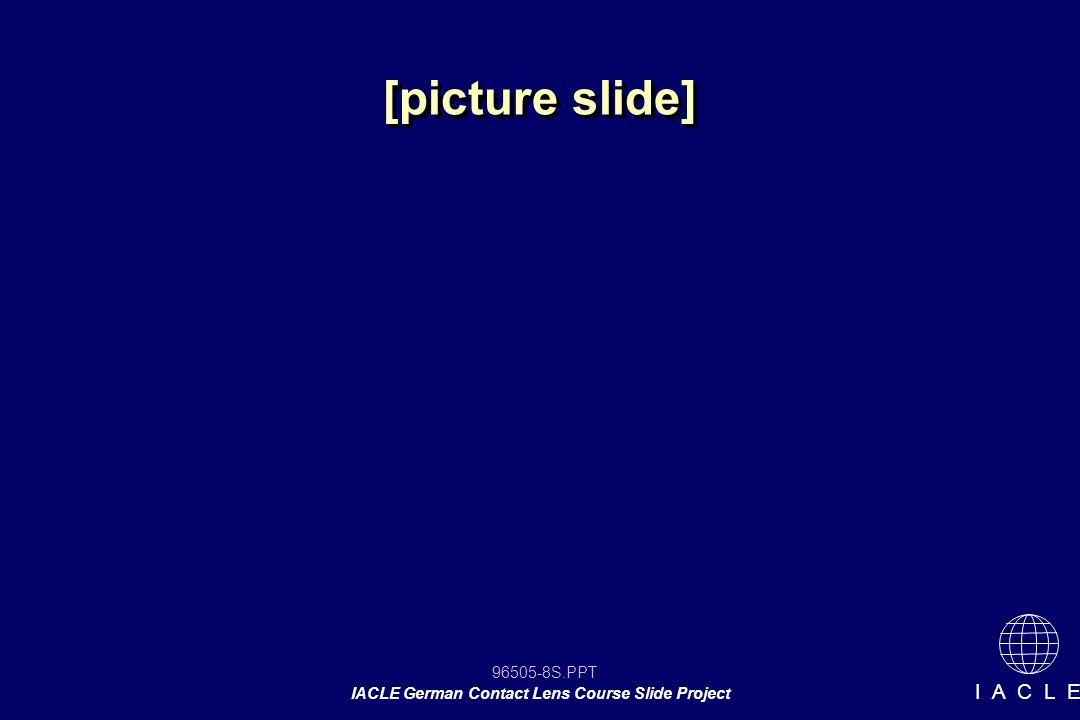 96505-29S.PPT IACLE German Contact Lens Course Slide Project I A C L E Einfluss des Durchmessers S 2 > S 1 > S 3 steiler ursprüngliche Anpassung ursprüngliche Anpassung flacher gleich S S 2 2 D 2 2 S S 1 1 D D 1 1 S S 4 4 D D 4 4 gleiche Basiskurve gleiche Basiskurve gleiche Basiskurve gleiche Basiskurve flachere Basiskurve flachere Basiskurve S S D D 1 1 1 1 S S D D 4 4 4 4 S S D D 3 3 3 3