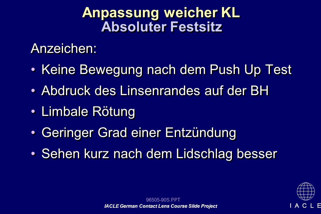 96505-90S.PPT IACLE German Contact Lens Course Slide Project I A C L E Anzeichen: Keine Bewegung nach dem Push Up Test Abdruck des Linsenrandes auf de