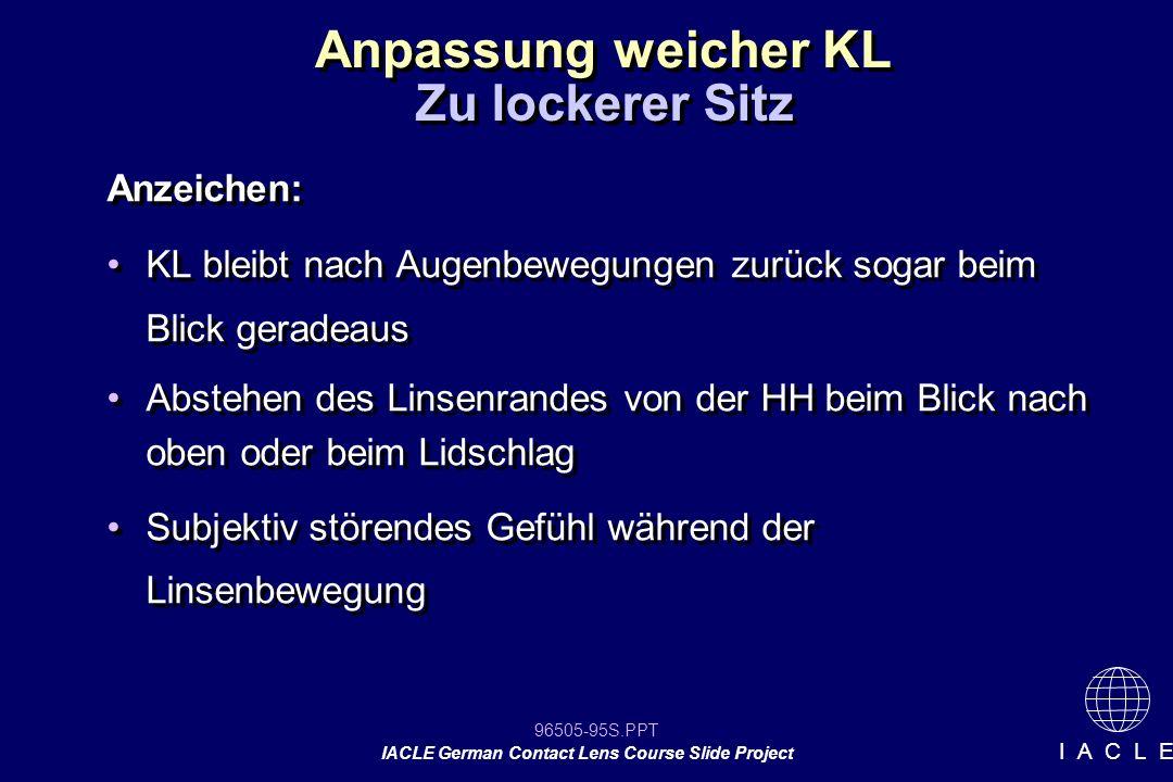 96505-95S.PPT IACLE German Contact Lens Course Slide Project I A C L E Anzeichen: KL bleibt nach Augenbewegungen zurück sogar beim Blick geradeaus Abs