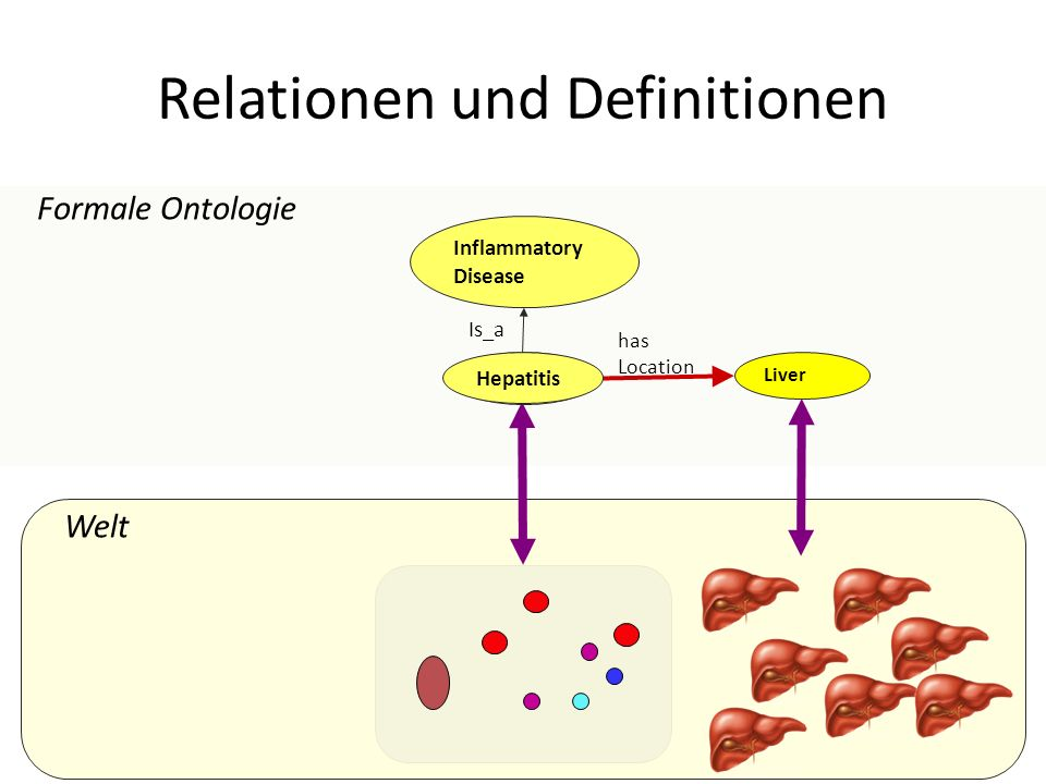 Welt Relationen und Definitionen Formale Ontologie Liver has Location Inflammatory Disease Hepatitis Is_a Hepatitis