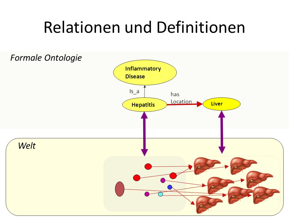 Welt Relationen und Definitionen Formale Ontologie Liver has Location Hepatitis Inflammatory Disease Is_a