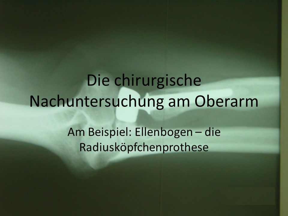 Die chirurgische Nachuntersuchung am Oberarm Am Beispiel: Ellenbogen – die Radiusköpfchenprothese