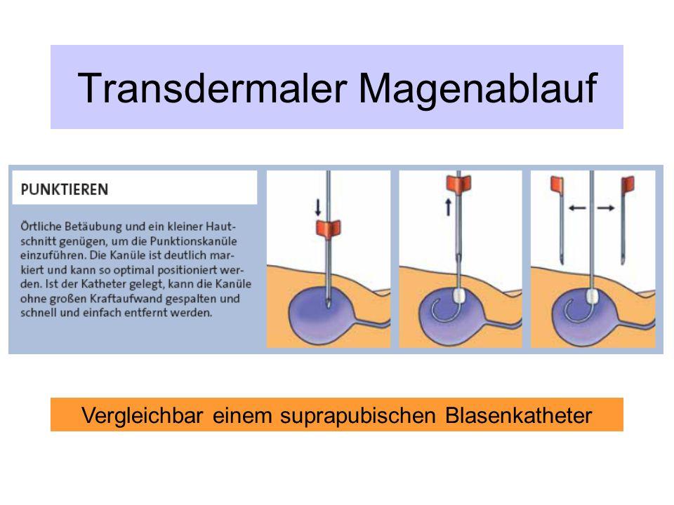 Transdermaler Magenablauf Vergleichbar einem suprapubischen Blasenkatheter