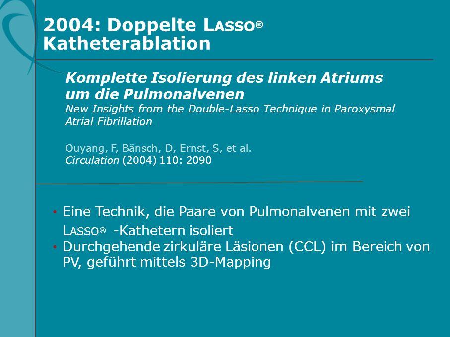 2004: Doppelte L ASSO ® Katheterablation Eine Technik, die Paare von Pulmonalvenen mit zwei L ASSO ® -Kathetern isoliert Durchgehende zirkuläre Läsion