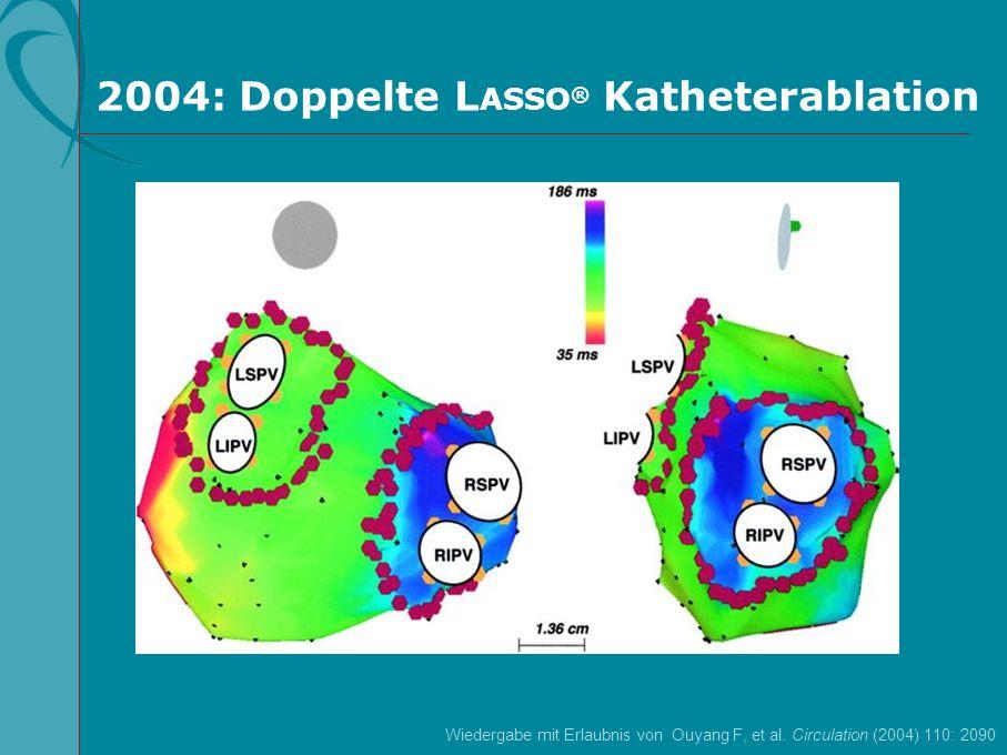 2004: Doppelte L ASSO ® Katheterablation Wiedergabe mit Erlaubnis von Ouyang F, et al. Circulation (2004) 110: 2090