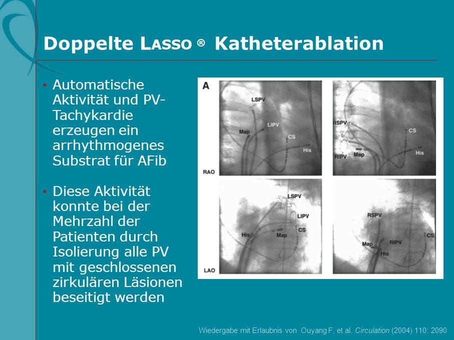 Doppelte L ASSO ® Katheterablation Automatische Aktivität und PV- Tachykardie erzeugen ein arrhythmogenes Substrat für AFib Diese Aktivität konnte bei