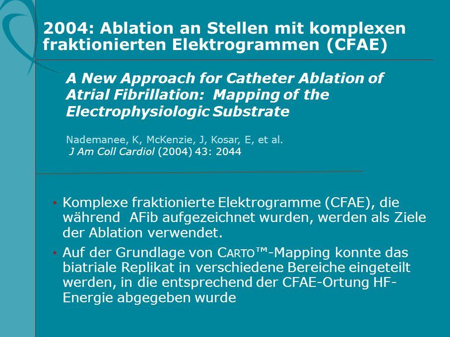 2004: Ablation an Stellen mit komplexen fraktionierten Elektrogrammen (CFAE) Komplexe fraktionierte Elektrogramme (CFAE), die während AFib aufgezeichn