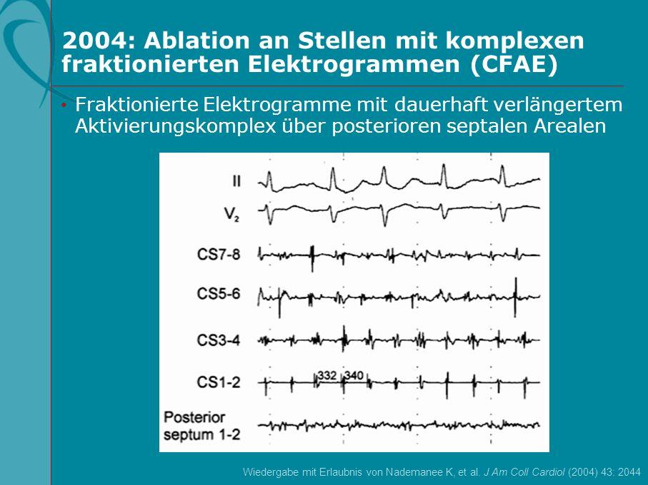 2004: Ablation an Stellen mit komplexen fraktionierten Elektrogrammen (CFAE) Wiedergabe mit Erlaubnis von Nademanee K, et al. J Am Coll Cardiol (2004)