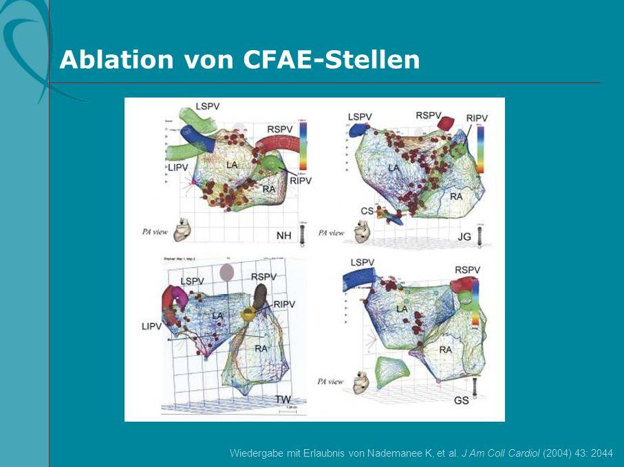 Ablation von CFAE-Stellen Wiedergabe mit Erlaubnis von Nademanee K, et al. J Am Coll Cardiol (2004) 43: 2044
