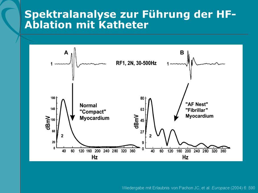 Spektralanalyse zur Führung der HF- Ablation mit Katheter Wiedergabe mit Erlaubnis von Pachon JC, et al. Europace (2004) 6: 590