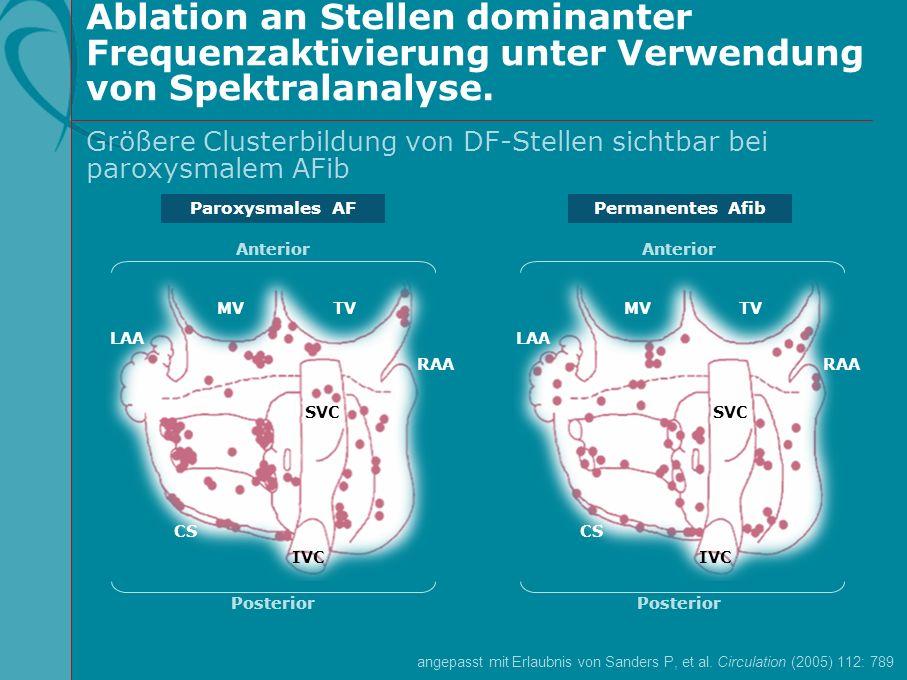 Ablation an Stellen dominanter Frequenzaktivierung unter Verwendung von Spektralanalyse. Paroxysmales AFPermanentes Afib Anterior Posterior IVC CS LAA