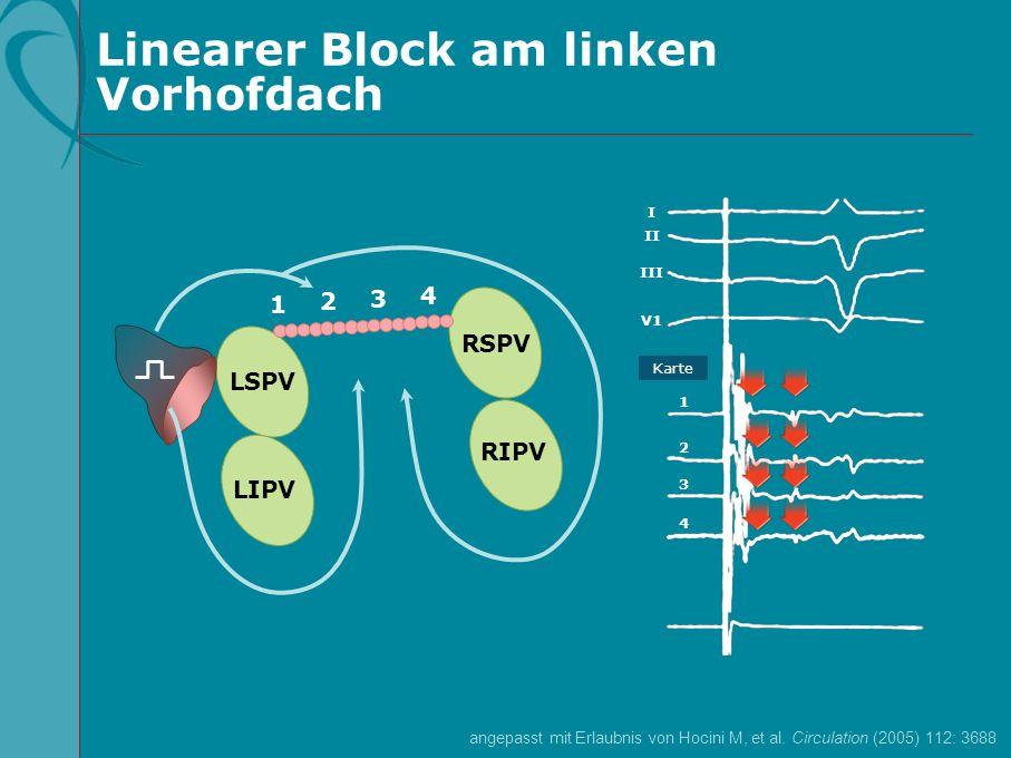 Linearer Block am linken Vorhofdach I II III V1 1 2 3 4 Karte LSPV LIPV RSPV RIPV 1 2 3 4 angepasst mit Erlaubnis von Hocini M, et al. Circulation (20