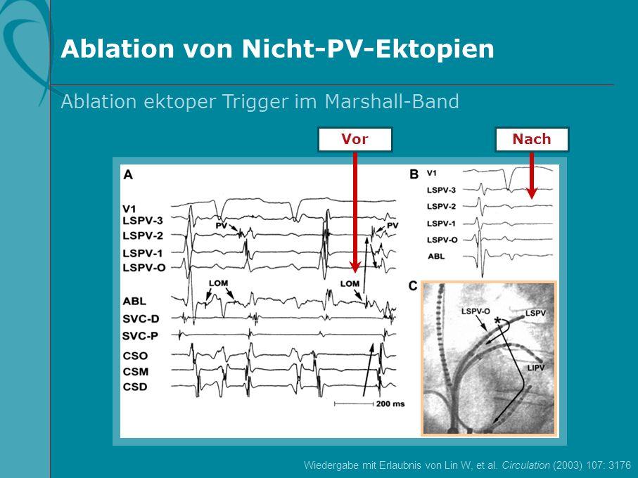 Ablation von Nicht-PV-Ektopien: Ergebnisse und Schlussfolgerungen Die Katheterablation beseitigte AFib mit akuten Erfolgsquoten von 63 % (hintere freie Wand des linken Vorhofs), 96 % (Vena cava superior), 100 % (Crista terminalis), 50 % (Marshall-Band), 100 % (Ostium des Sinus coronarius) und 0 % (Septum interatriale) Während eines Nachbeobachtungszeitraums von 22+11 Monaten waren bei 43 Patienten (63,2 %) Antiarrhythmika abgesetzt ohne AFib-Rezidiv Lin W, et al.