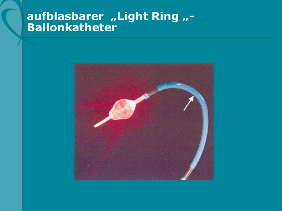 aufblasbarer Light Ring - Ballonkatheter