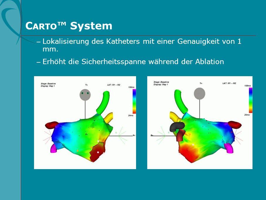 C ARTO System – Lokalisierung des Katheters mit einer Genauigkeit von 1 mm. – Erhöht die Sicherheitsspanne während der Ablation