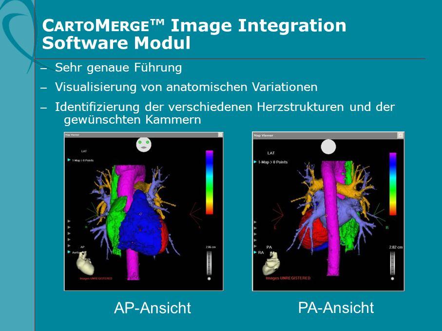 – Sehr genaue Führung – Visualisierung von anatomischen Variationen – Identifizierung der verschiedenen Herzstrukturen und der gewünschten Kammern C A