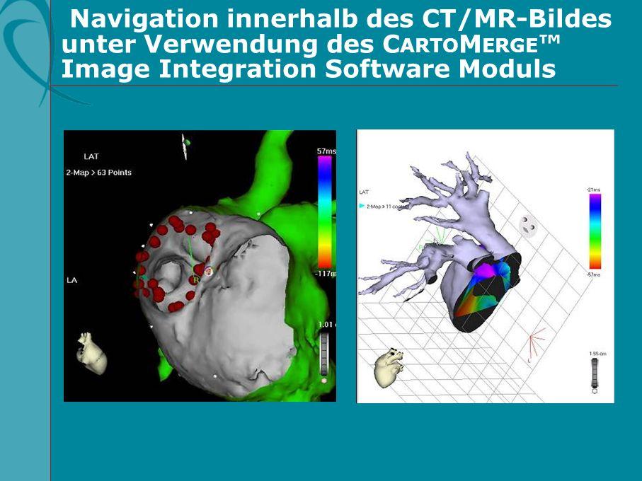 Navigation innerhalb des CT/MR-Bildes unter Verwendung des C ARTO M ERGE Image Integration Software Moduls