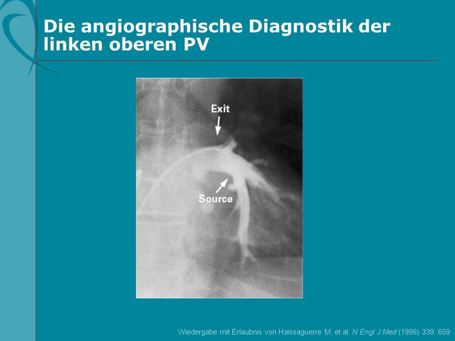 Die angiographische Diagnostik der linken oberen PV Wiedergabe mit Erlaubnis von Haïssaguerre M, et al. N Engl J Med (1998) 339: 659