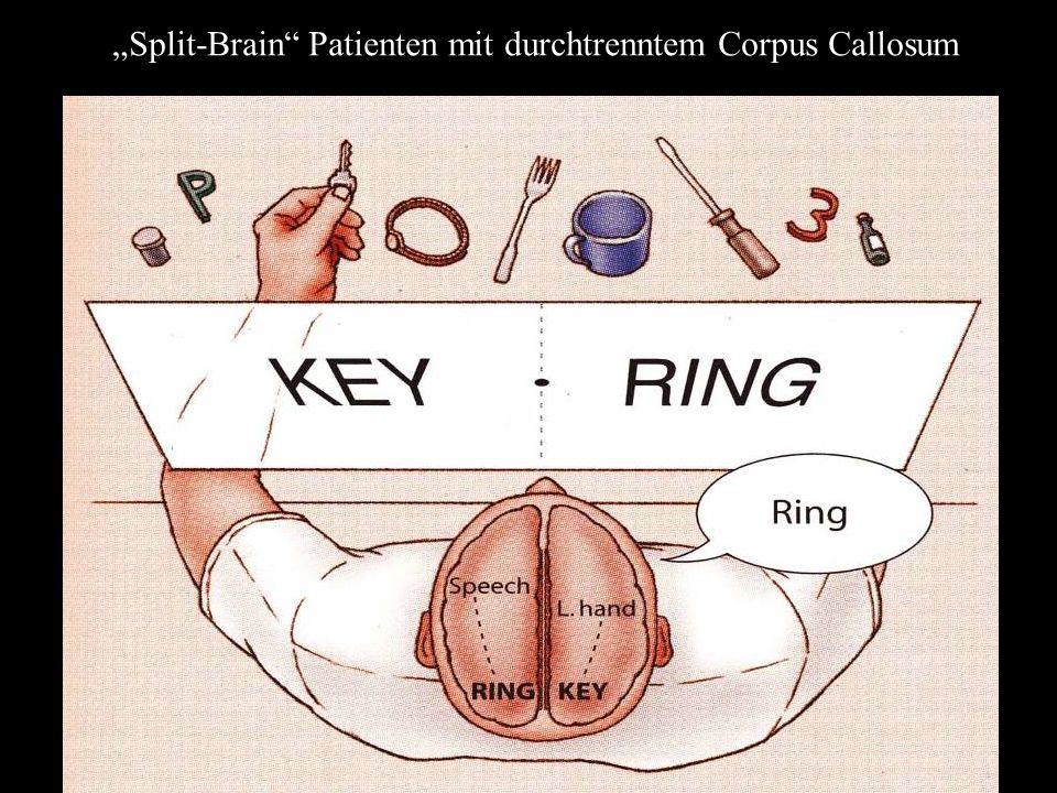 Split-Brain Patienten mit durchtrenntem Corpus Callosum