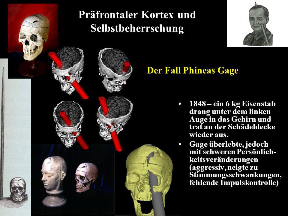 Präfrontaler Kortex und Selbstbeherrschung Der Fall Phineas Gage 1848 – ein 6 kg Eisenstab drang unter dem linken Auge in das Gehirn und trat an der S