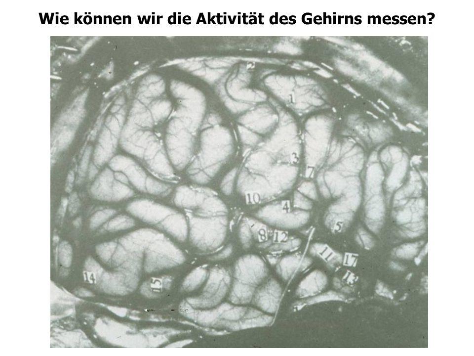 Wie können wir die Aktivität des Gehirns messen?