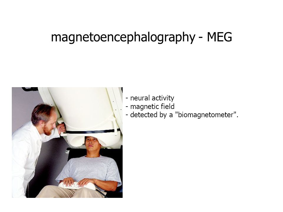 magnetoencephalography - MEG - neural activity - magnetic field - detected by a