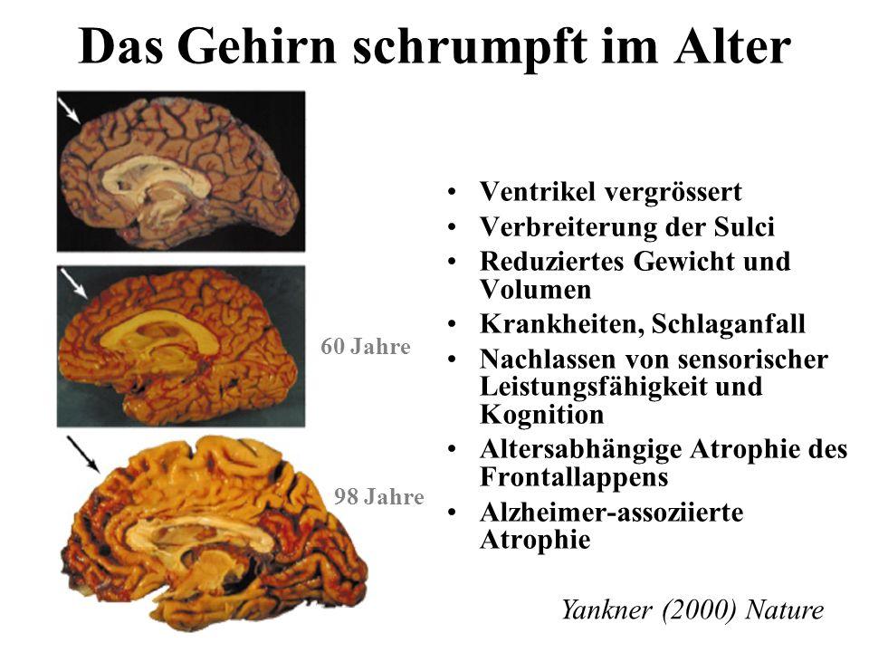 Das Gehirn schrumpft im Alter Ventrikel vergrössert Verbreiterung der Sulci Reduziertes Gewicht und Volumen Krankheiten, Schlaganfall Nachlassen von s