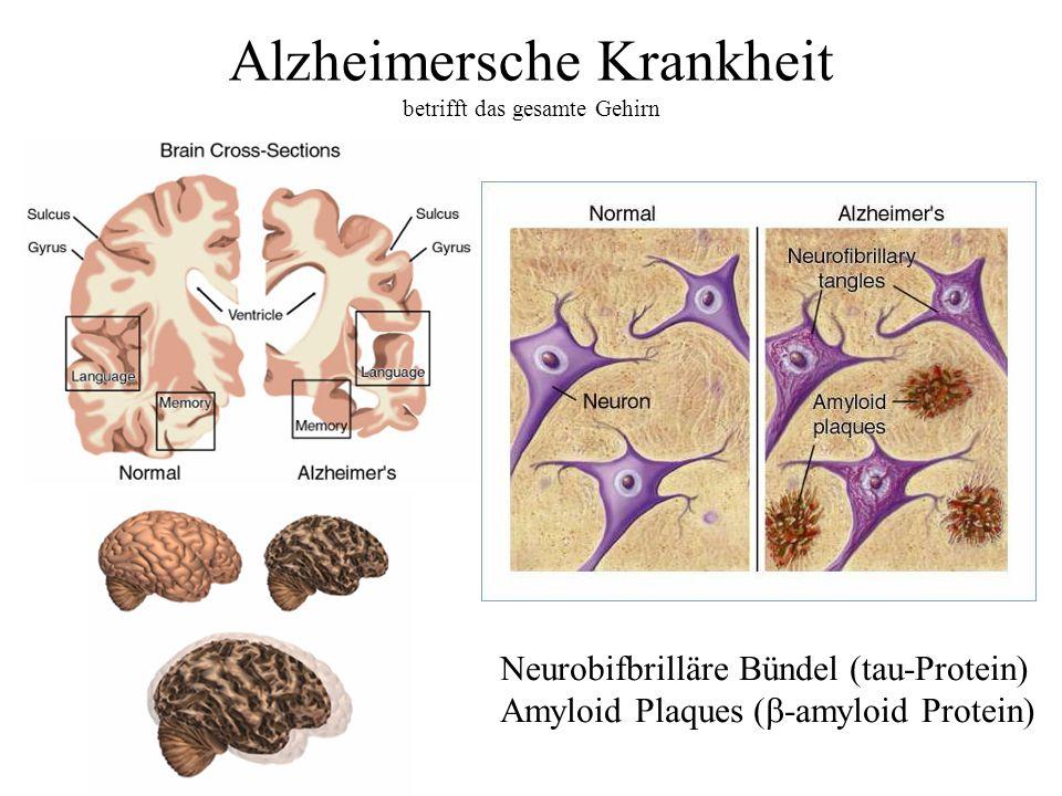 Alzheimersche Krankheit betrifft das gesamte Gehirn Neurobifbrilläre Bündel (tau-Protein) Amyloid Plaques ( -amyloid Protein)