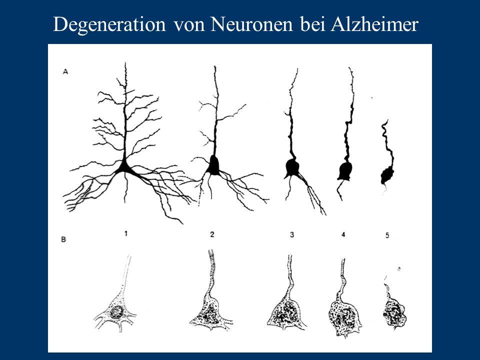 Degeneration von Neuronen bei Alzheimer