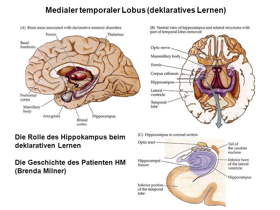 Medialer temporaler Lobus (deklaratives Lernen) Die Rolle des Hippokampus beim deklarativen Lernen Die Geschichte des Patienten HM (Brenda Milner)
