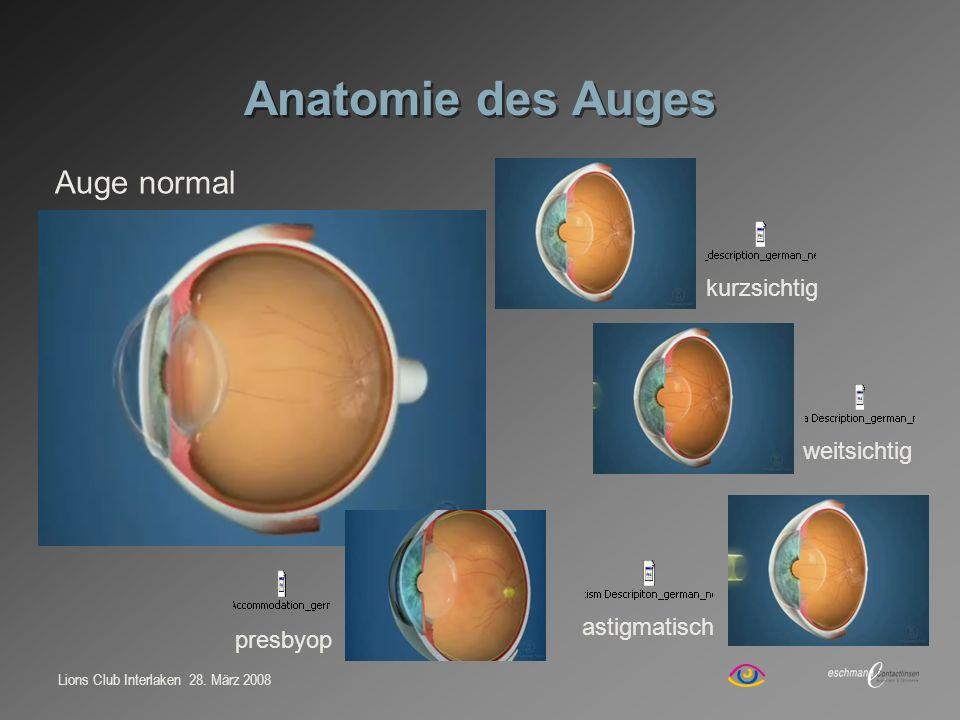 Lions Club Interlaken 28. März 2008 Anatomie des Auges Auge normal kurzsichtig weitsichtig astigmatisch presbyop