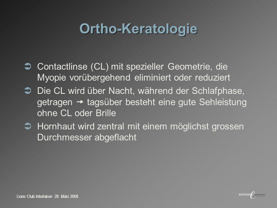 Lions Club Interlaken 28. März 2008 Ortho-Keratologie Contactlinse (CL) mit spezieller Geometrie, die Myopie vorübergehend eliminiert oder reduziert D