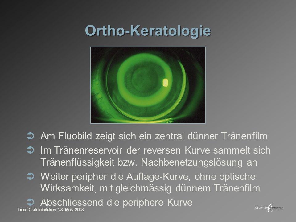Lions Club Interlaken 28. März 2008 Ortho-Keratologie Am Fluobild zeigt sich ein zentral dünner Tränenfilm Im Tränenreservoir der reversen Kurve samme