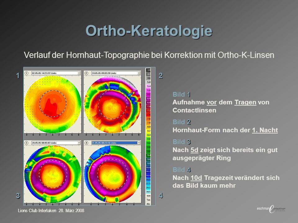 Lions Club Interlaken 28. März 2008 Ortho-Keratologie 1 Bild 1 Aufnahme vor dem Tragen von Contactlinsen 2 Bild 2 Hornhaut-Form nach der 1. Nacht 3 Bi